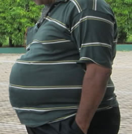 Obese Indian Man